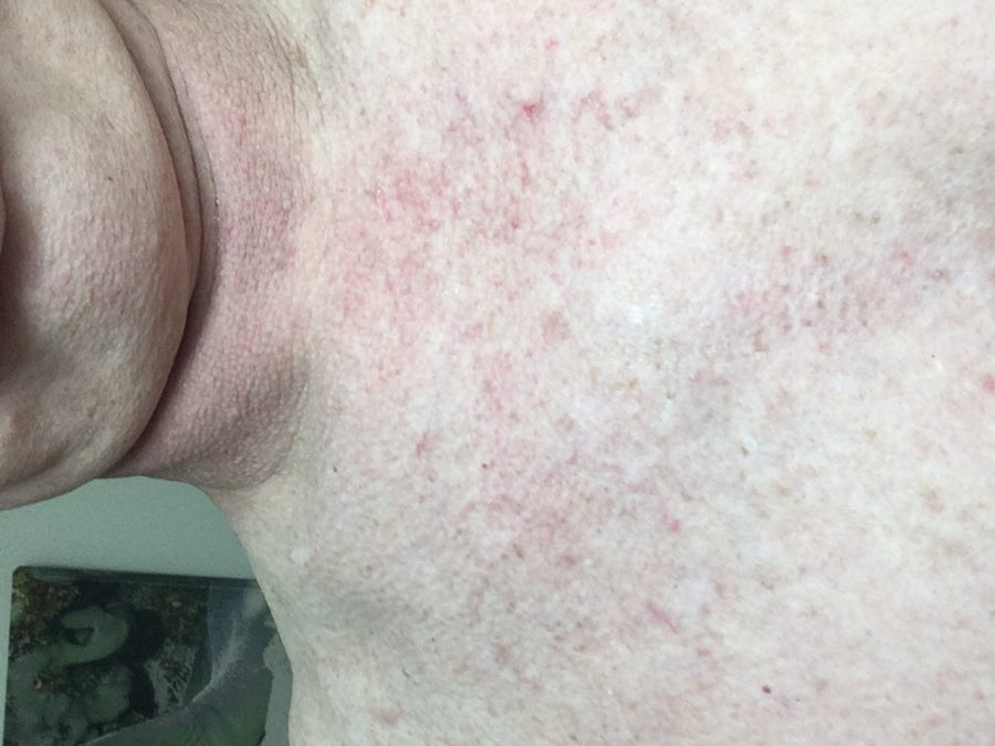 Chest Shower Rash After