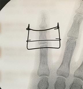 fingerpins