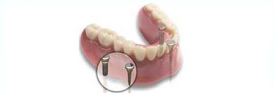 Seapoint Dental Clinic | Seapoint Clinic | Dental Clinic