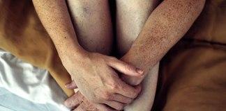 Número de pintas no braço pode sinalizar propensão a câncer de pele, indica pesquisa