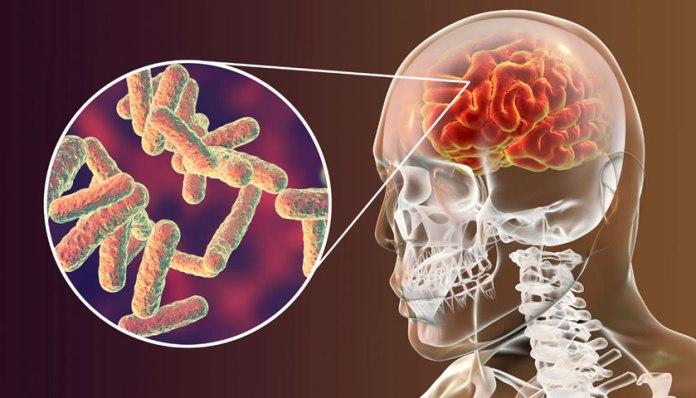 O que é a meningite meningocócica?