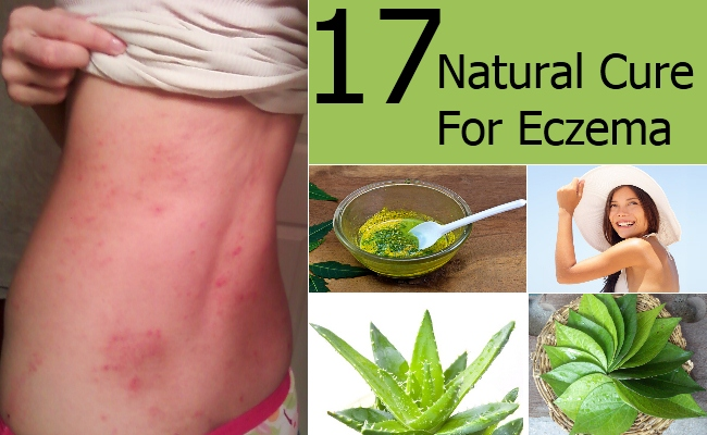 Best Home Remedy For Baby Eczema