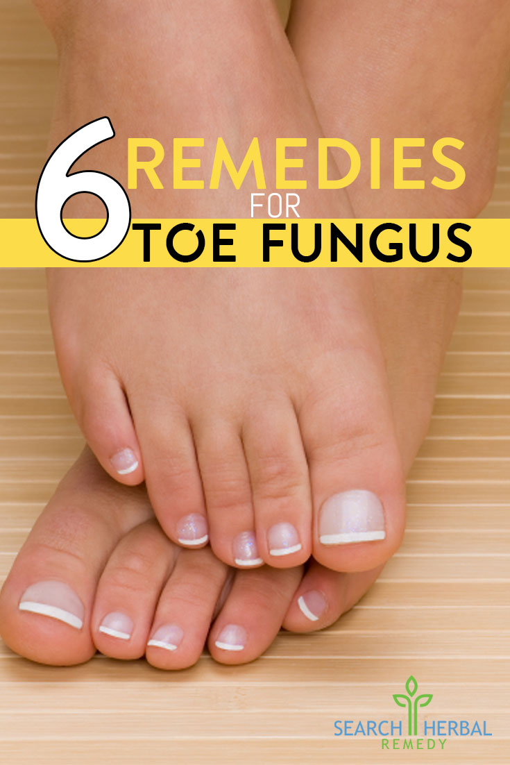 6-remedies-for-toe-fungus