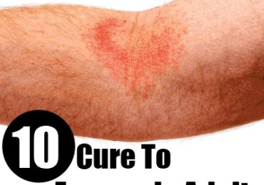 eczema in adults