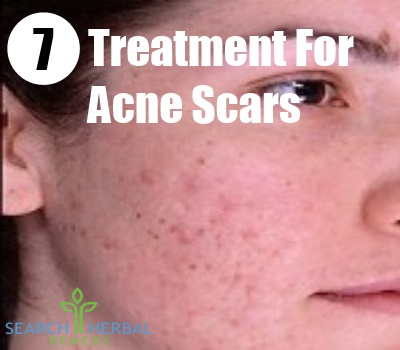 7 Treatment For Acne Scars