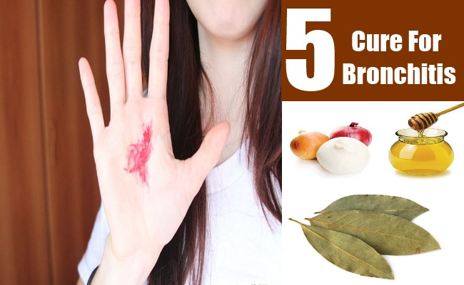 Can You Cure Bronchitis Naturally