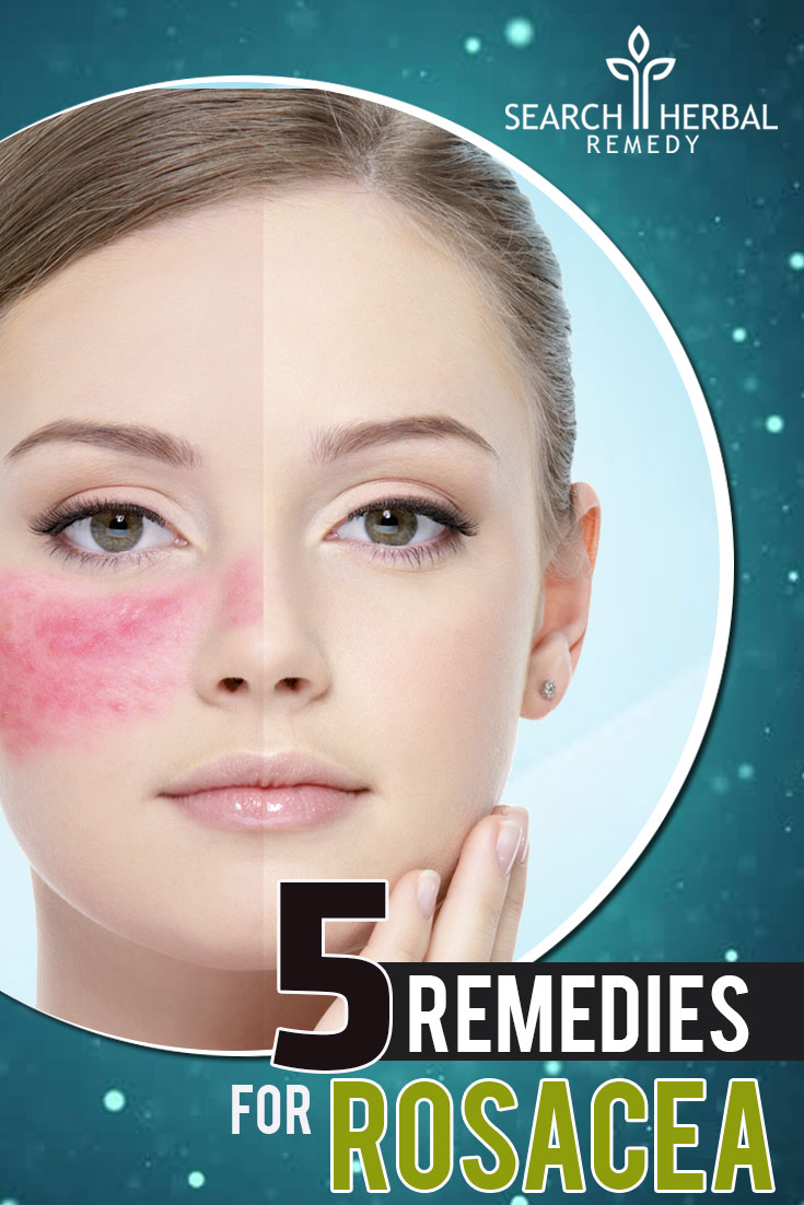 5-remedies-for-rosacea