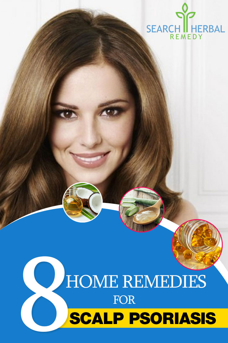8-home-remedies-for-scalp-psoriasis
