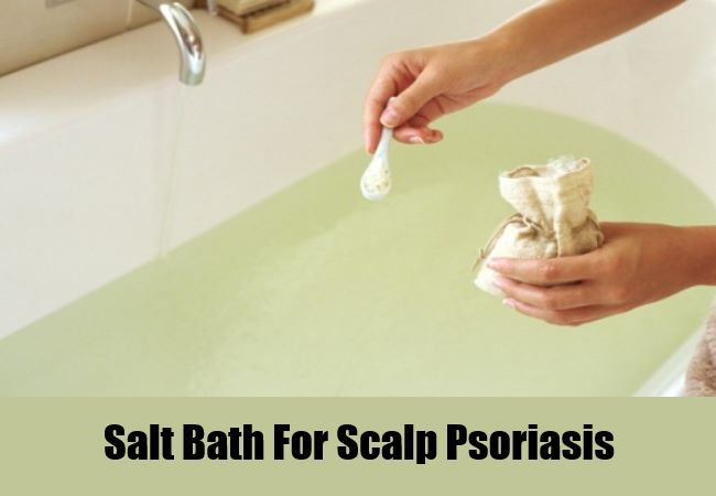 Salt Bath For Scalp Psoriasis