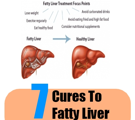 7 Natural Cures For Fatty Liver How To Cure Fatty Liver