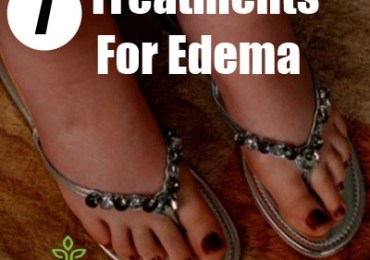 7 Treatments For Edema