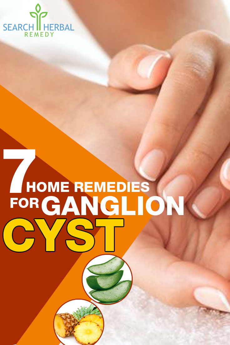 7-home-remedies-for-ganglion-cyst