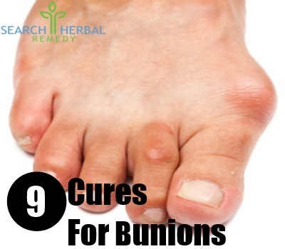 9 Cures For Bunions