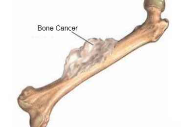 Effective Natural Cure For Bone Cancer