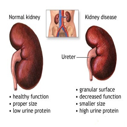 How To Cure Chronic Kidney Disease Naturally