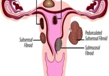 Top 11 Herbal Remedies For Fibroids