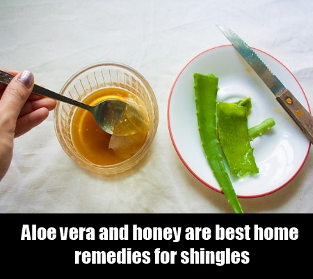 8 Effective Home Remedies For Shingles Natural