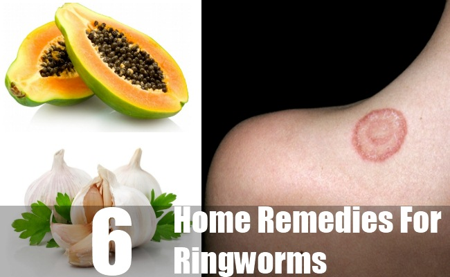 Ringworms