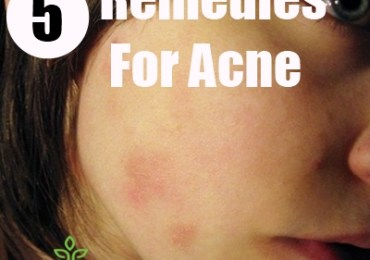 5 Remedies For Acne