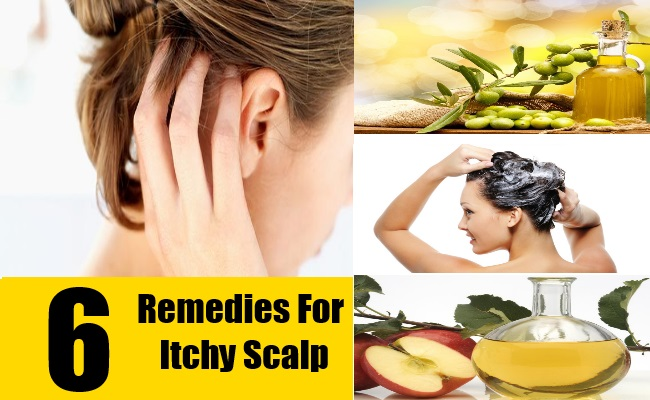 6 Remedies For Itchy Scalp