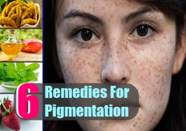 6 Remedies For Pigmentation