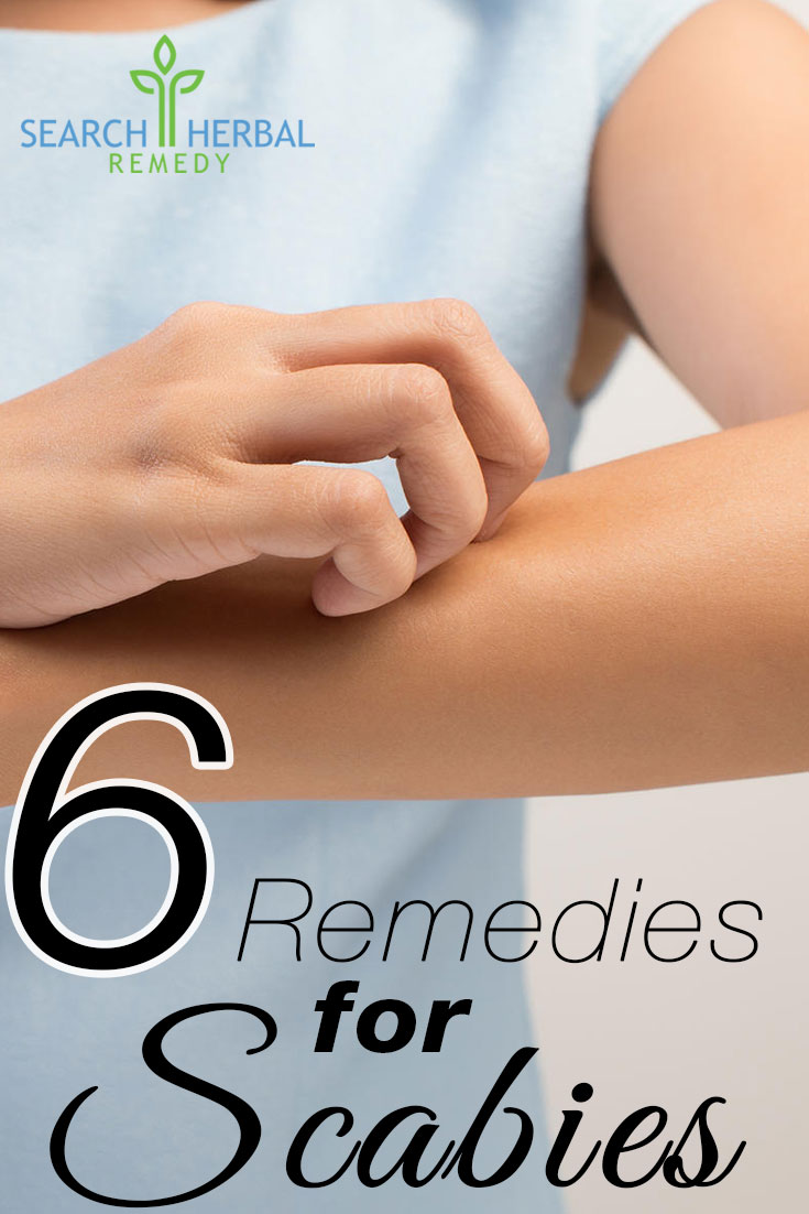 6-remedies-for-scabies