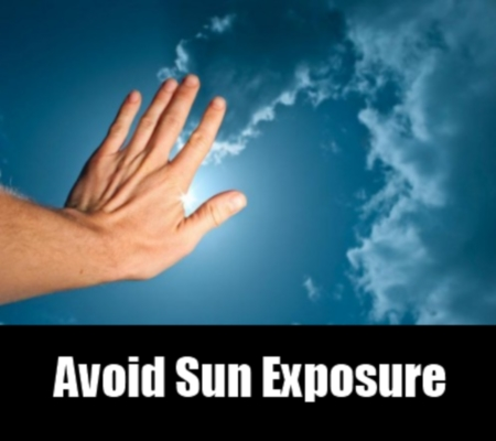 avoid sun exposure