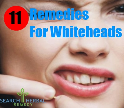11 Remedies For Whiteheads
