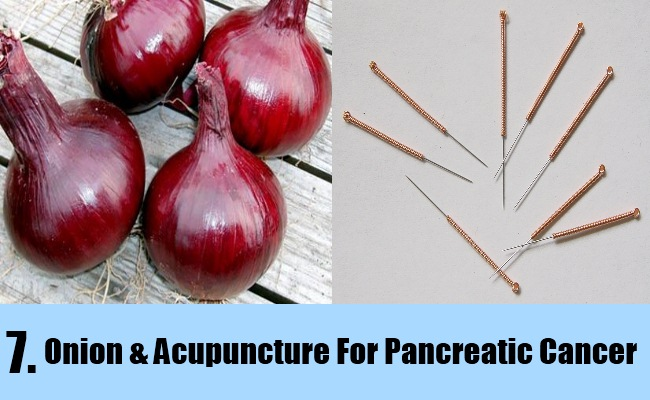 Onion & Acupuncture