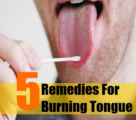 burning mouth cure