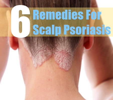 Home Remedies For Psoriasis Dandruff