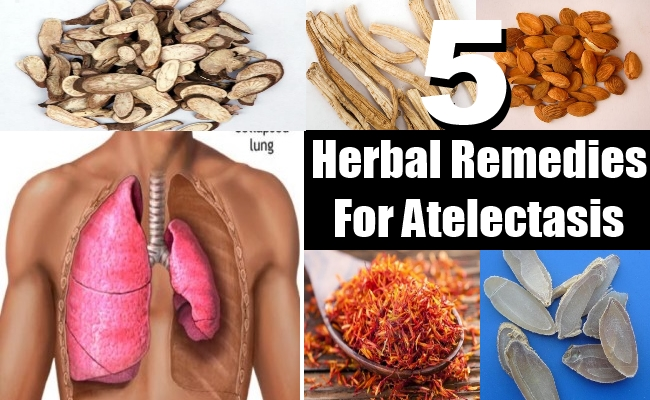 Remedies For Atelectasis