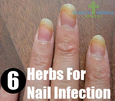 nail infection