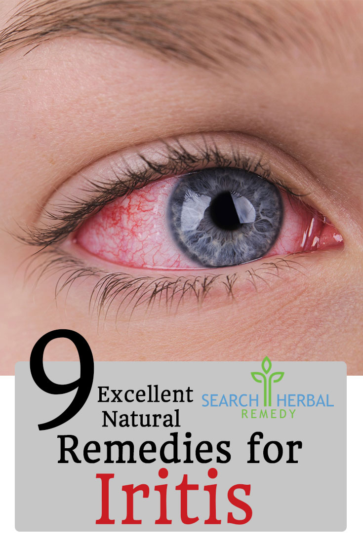 9-excellent-natural-cures-for-iritis