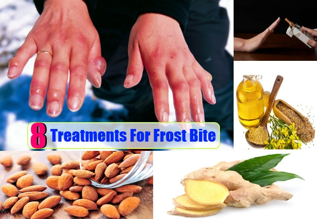 Treatments For Frost Bite
