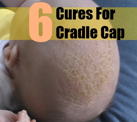 Easy And Beneficial Ways To Cure Cradle Cap Naturally