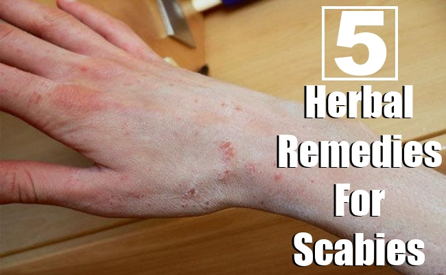 Herbal Remedies For Scabies
