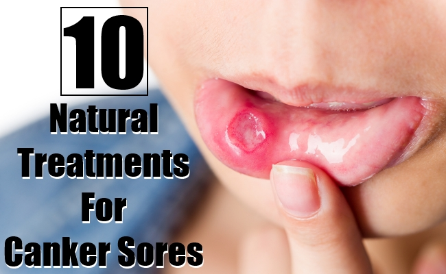 Natural Treatments For Canker Sores