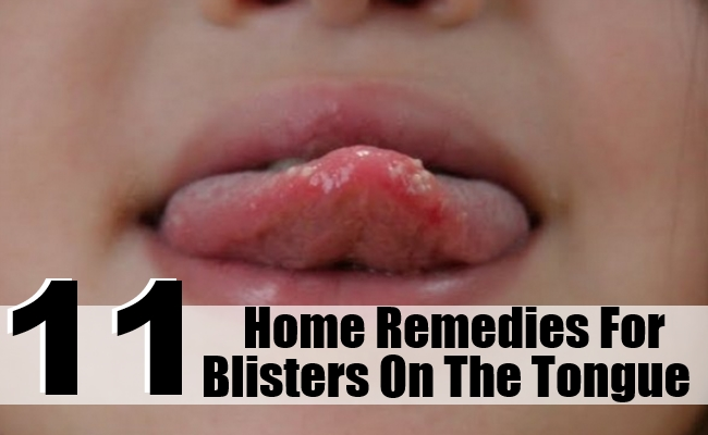 Remedies For Blisters On The Tongue