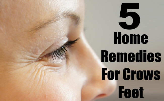 Home Remedies For Crows Feet