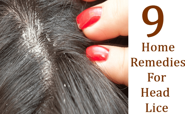 9 Home Remedies For Head Lice
