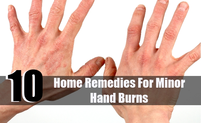 10 Home Remedies For Minor Hand Burns