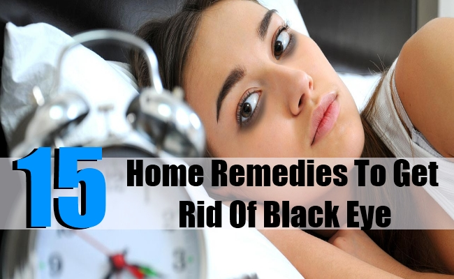15 Superb Home Remedies To Get Rid Of Black Eye