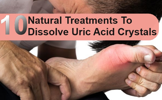 Natural Treatments To Dissolve Uric Acid Crystals