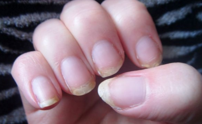 Home Remedy For Brittle Nails
