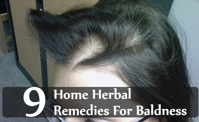Home Herbal Remedies For Baldness