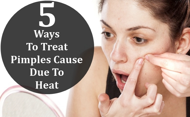 Ways To Treat Pimples Cause Due To Heat