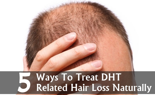 dht and hair loss relationship