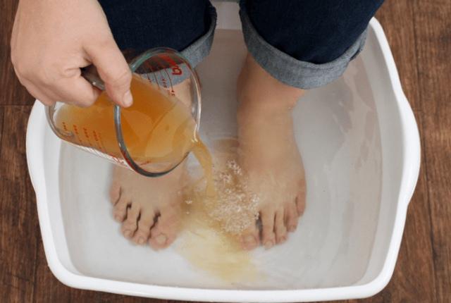 Apple Cider Vinegar Foot Soak