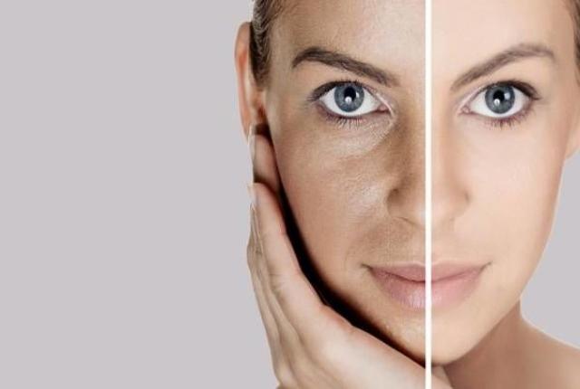 It Cleanses Skin Pores:
